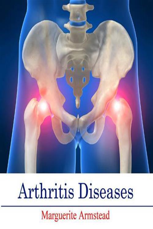 Arthritis Diseases