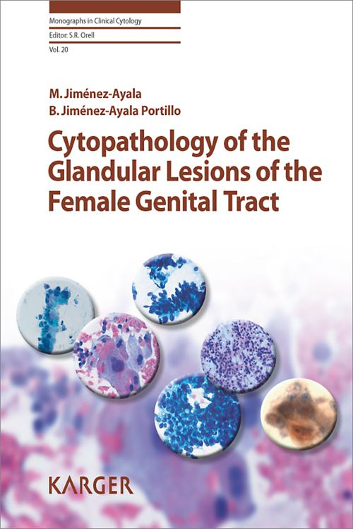 Cytopathology of the Glandular Lesions of the Female Genital Tract
